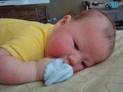 csecsemő ekcéma sudocrem