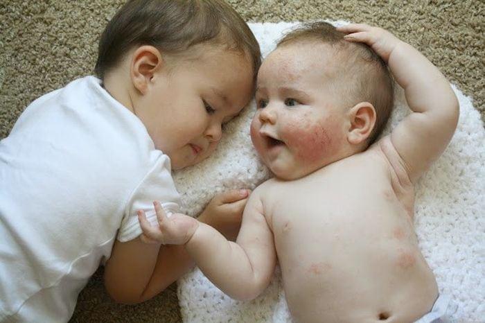 ekcéma oka babáknál