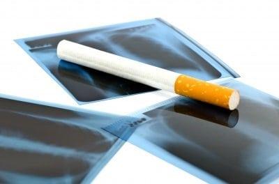 dohányzás terhesség alatt