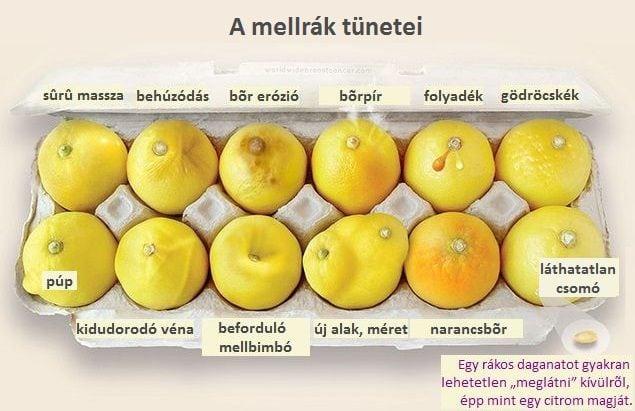 citromok és a mellrák