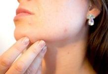 Várandósság alatti bőrproblémák
