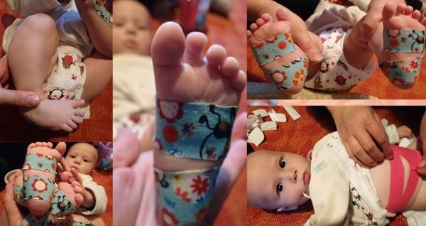 Kinesio taping babáknak